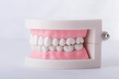 精巧な歯の型